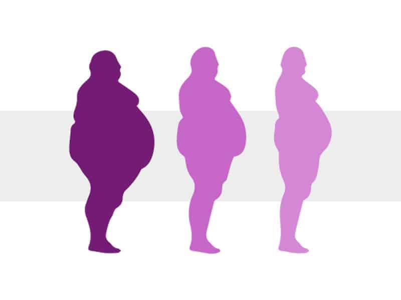 ¿Qué es Obesidad Mórbida o Extrema?
